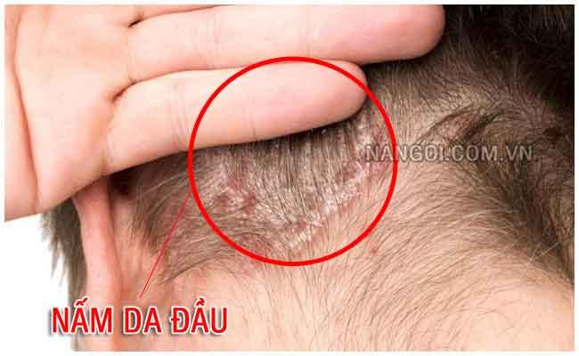 Cách trị nấm da đầu tận gốc