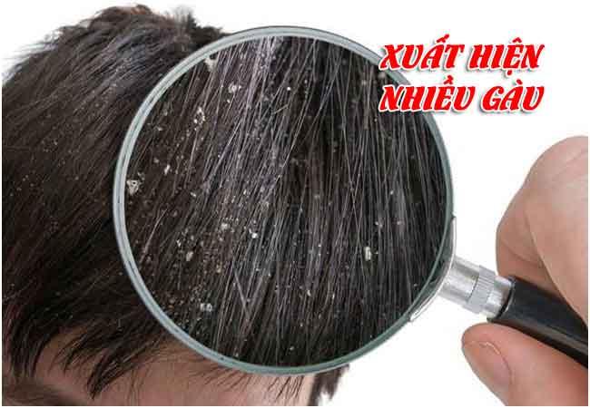 Nấm da đầu làm tóc có nhiều gàu bất thường