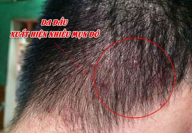Nấm da đầu làm xuất hiện nhiều mụn đỏ