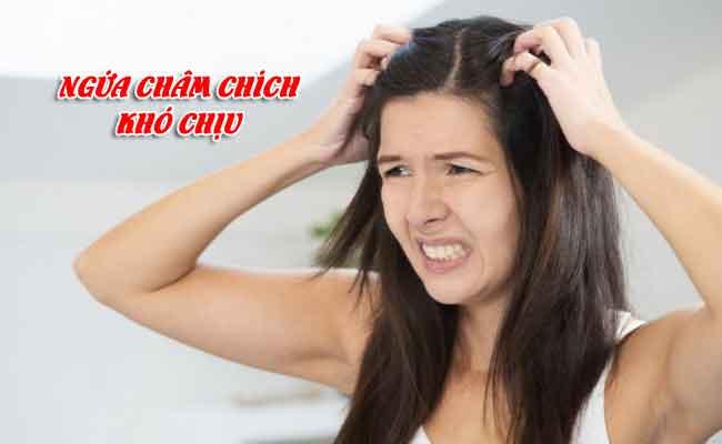 Ngứa châm chích khó chịu do nấm da đầu