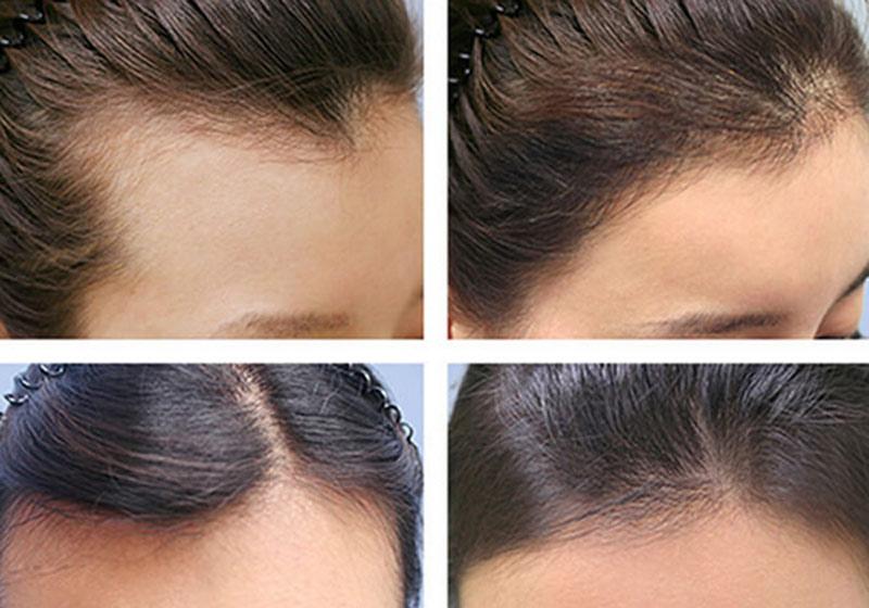 Cách kích thích mọc tóc hiệu quả nhất